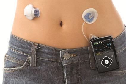 Слева CGM. Справа инсулиновая помпа